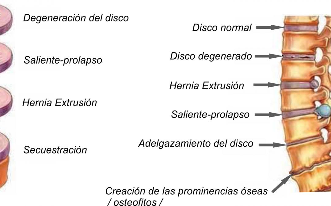 Enfermedad degenerativa de disco